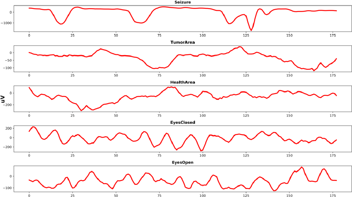 Figure 1 for Using Deep Learning and Machine Learning to Detect Epileptic Seizure with Electroencephalography (EEG) Data