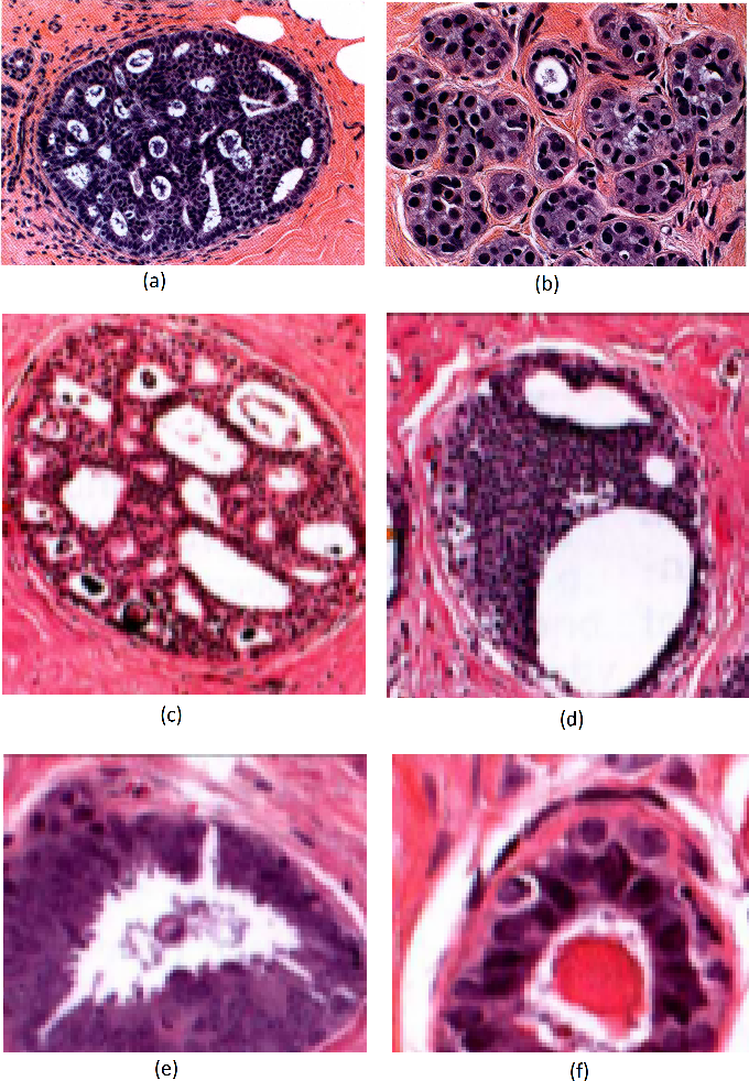 Figure 1 for Evaluation of Joint Multi-Instance Multi-Label Learning For Breast Cancer Diagnosis