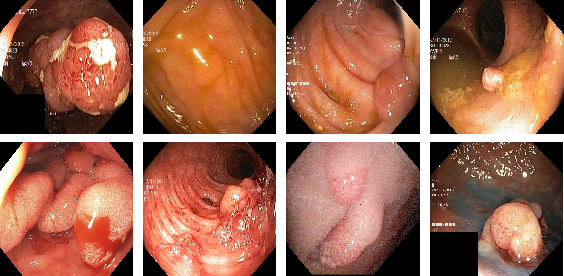 Figure 1 for A Comprehensive Study on Colorectal Polyp Segmentation with ResUNet++, Conditional Random Field and Test-Time Augmentation