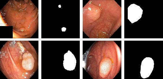 Figure 3 for A Comprehensive Study on Colorectal Polyp Segmentation with ResUNet++, Conditional Random Field and Test-Time Augmentation