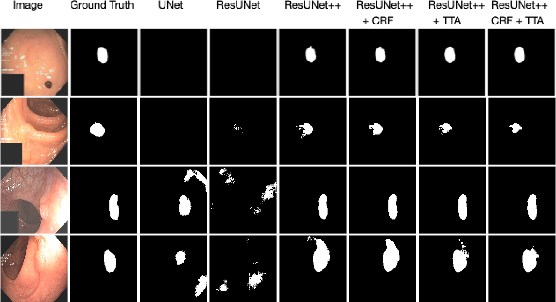 Figure 4 for A Comprehensive Study on Colorectal Polyp Segmentation with ResUNet++, Conditional Random Field and Test-Time Augmentation
