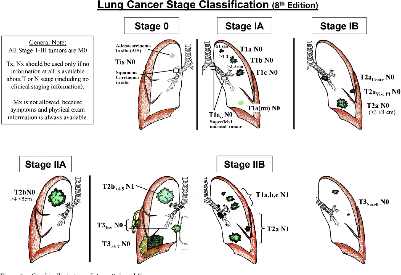 How to Stage Lung Cancer