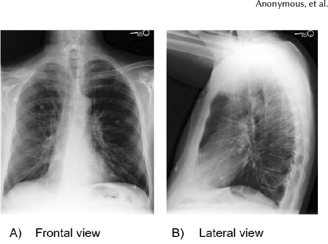 Figure 1 for CheXclusion: Fairness gaps in deep chest X-ray classifiers
