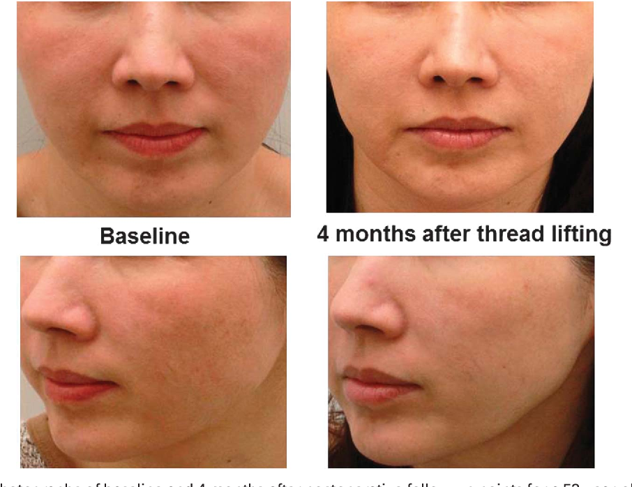 Clinical Evaluations of a Novel Thread Lifting Regimen Using Barbed
