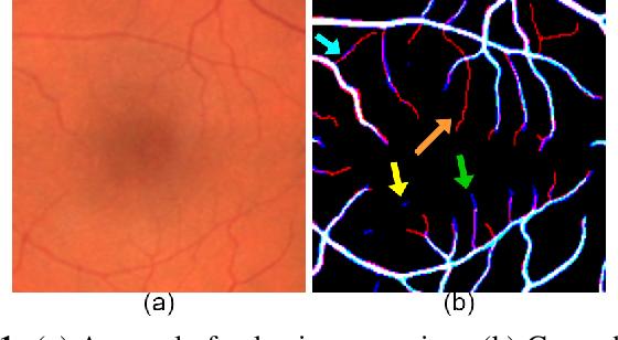 Figure 1 for Objective-Dependent Uncertainty Driven Retinal Vessel Segmentation