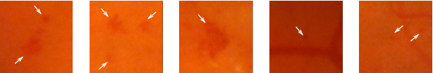 Figure 1 for An Ensemble Deep Learning Based Approach for Red Lesion Detection in Fundus Images