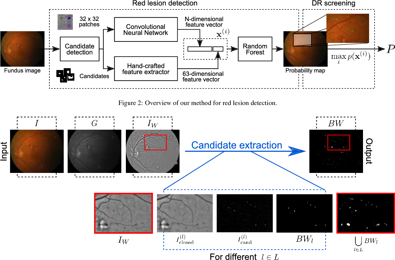 Figure 3 for An Ensemble Deep Learning Based Approach for Red Lesion Detection in Fundus Images