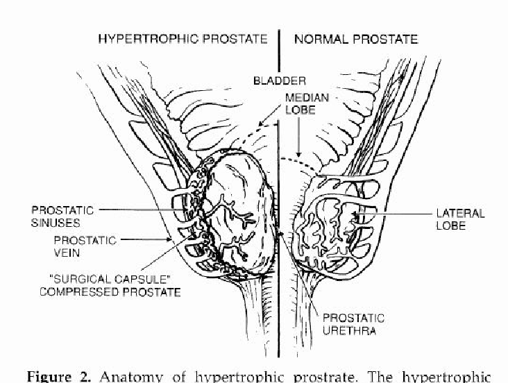 Figure 2 From Transurethral Resection Of The Prostate Turp