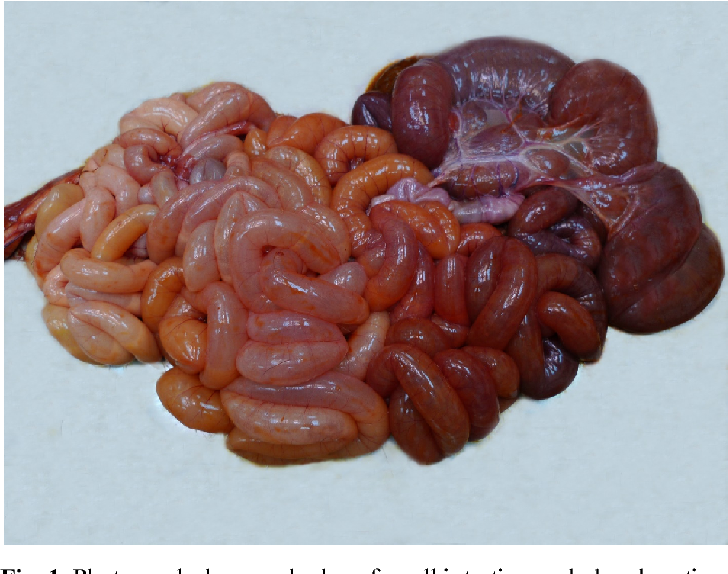 Figure 2 From Ileal Atresia Concurrent With Agenesis Of The