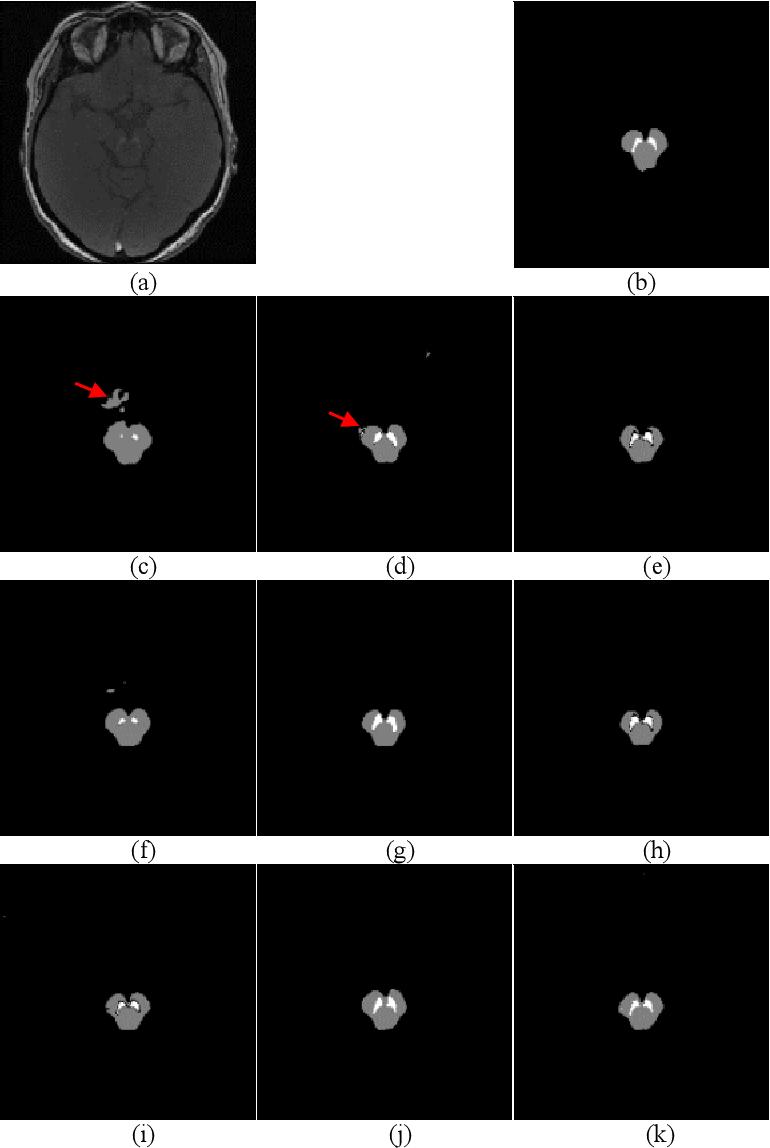 Figure 4 for FU-net: Multi-class Image Segmentation Using Feedback Weighted U-net