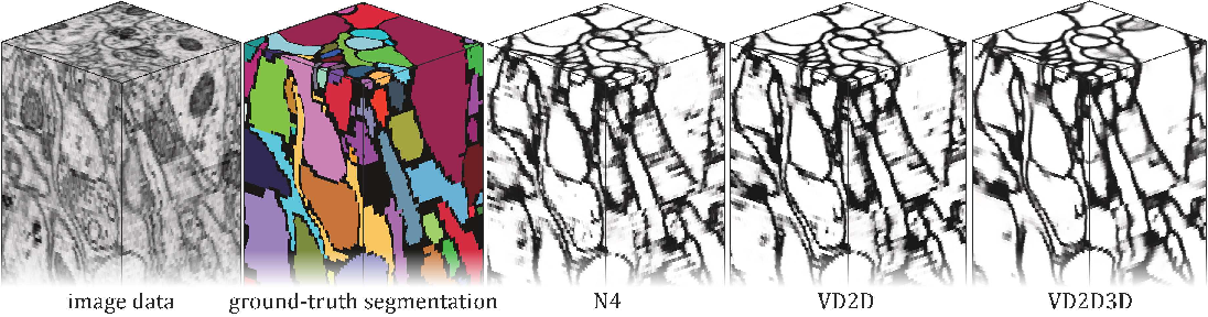 Figure 3 for Recursive Training of 2D-3D Convolutional Networks for Neuronal Boundary Detection