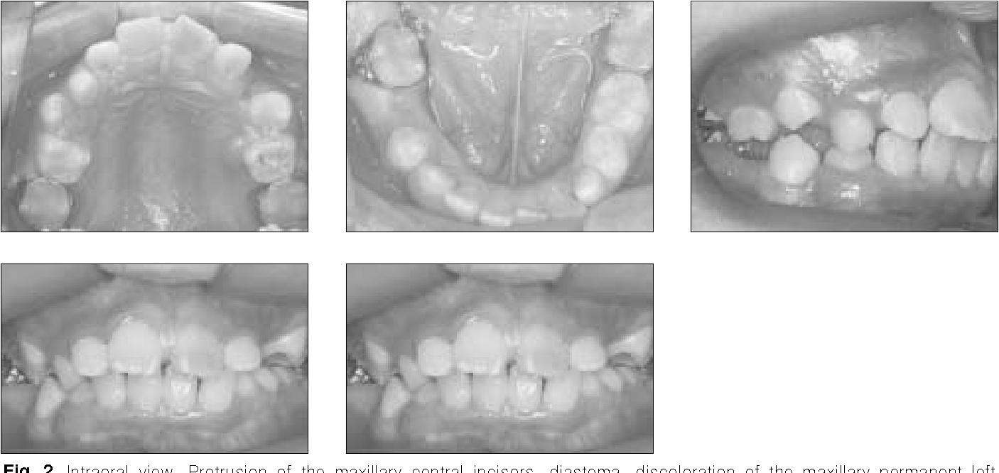 Figure 2 from Dentin dysplasia type I--a case report. - Semantic Scholar