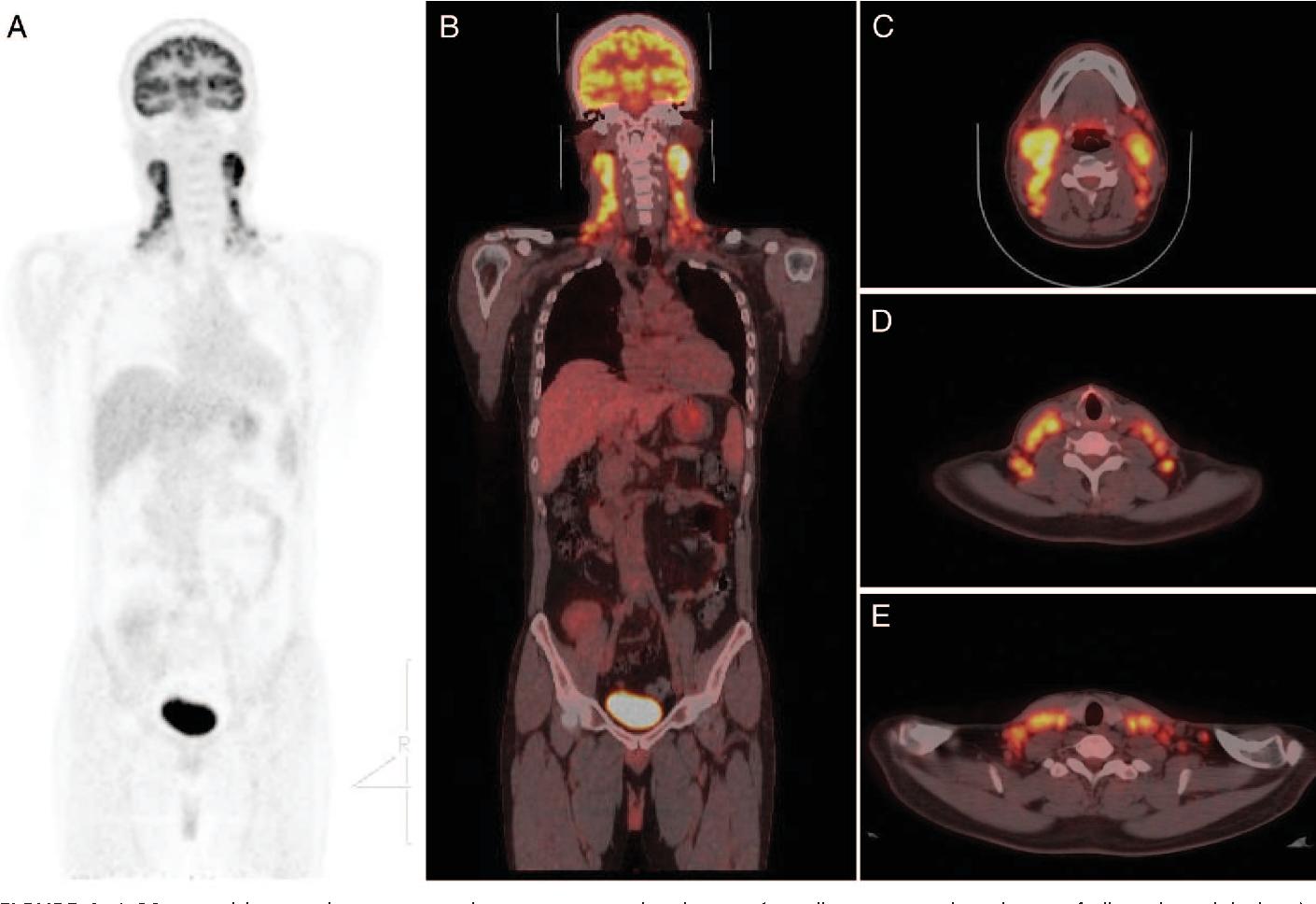 Usefulness of F-18 FDG PET/CT in the evaluation of neck swelling in ...