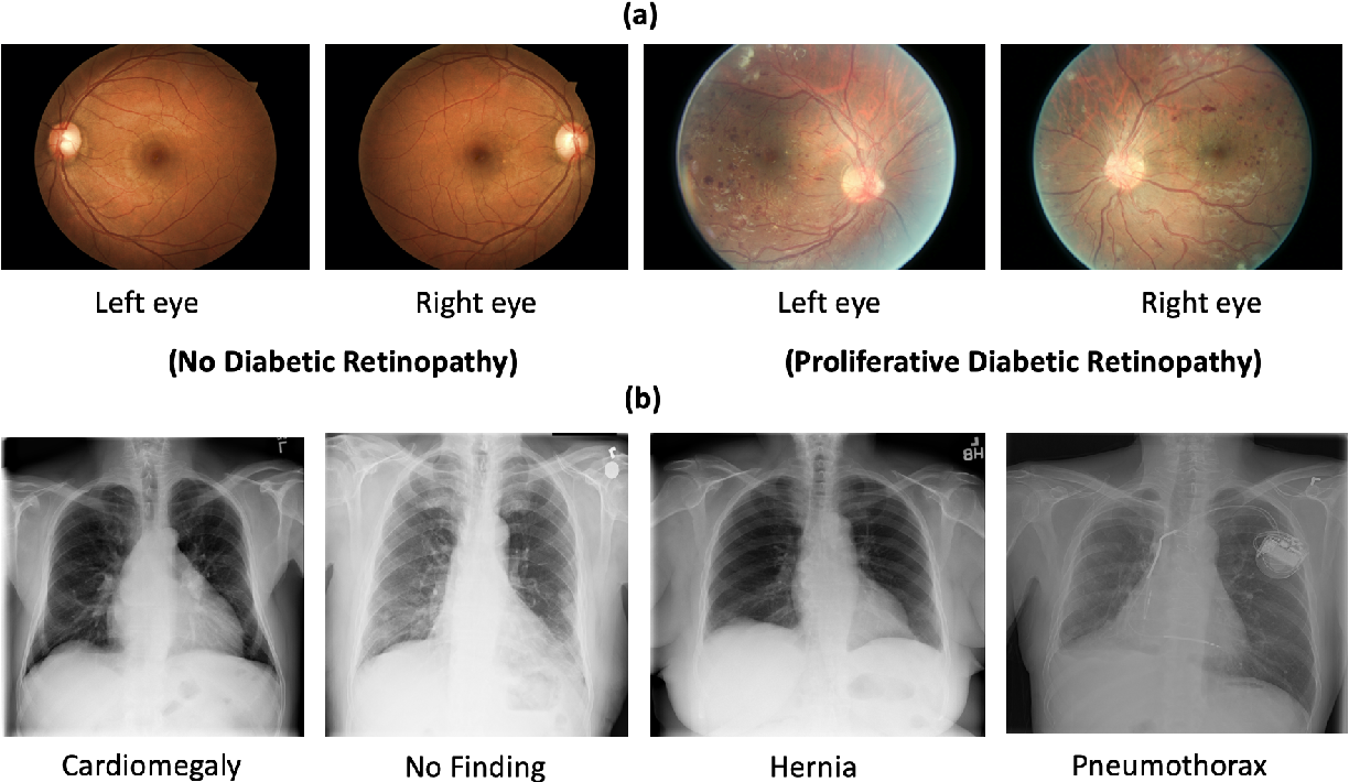 Figure 1 for Evaluating Knowledge Transfer in Neural Network for Medical Images