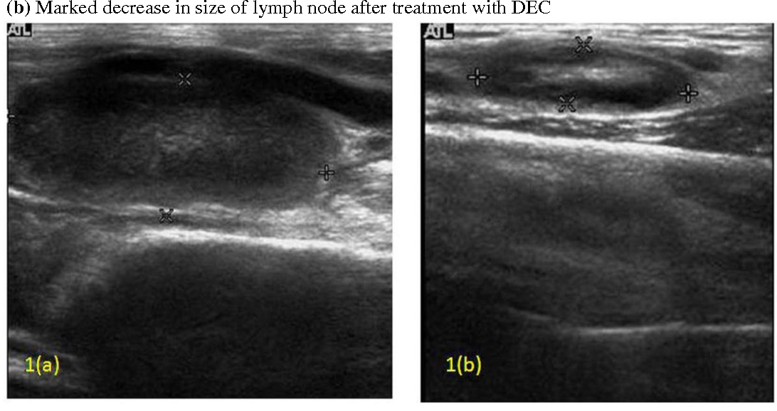 Structure Of Epitrochlear Lymph Node Semantic Scholar