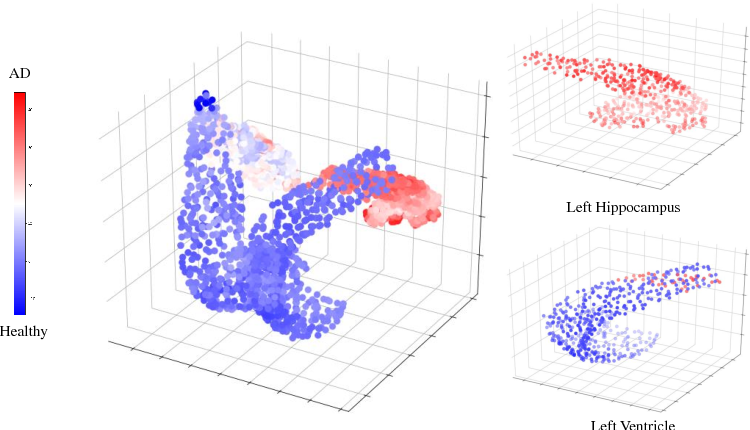 Figure 4 for Deep Multi-Structural Shape Analysis: Application to Neuroanatomy