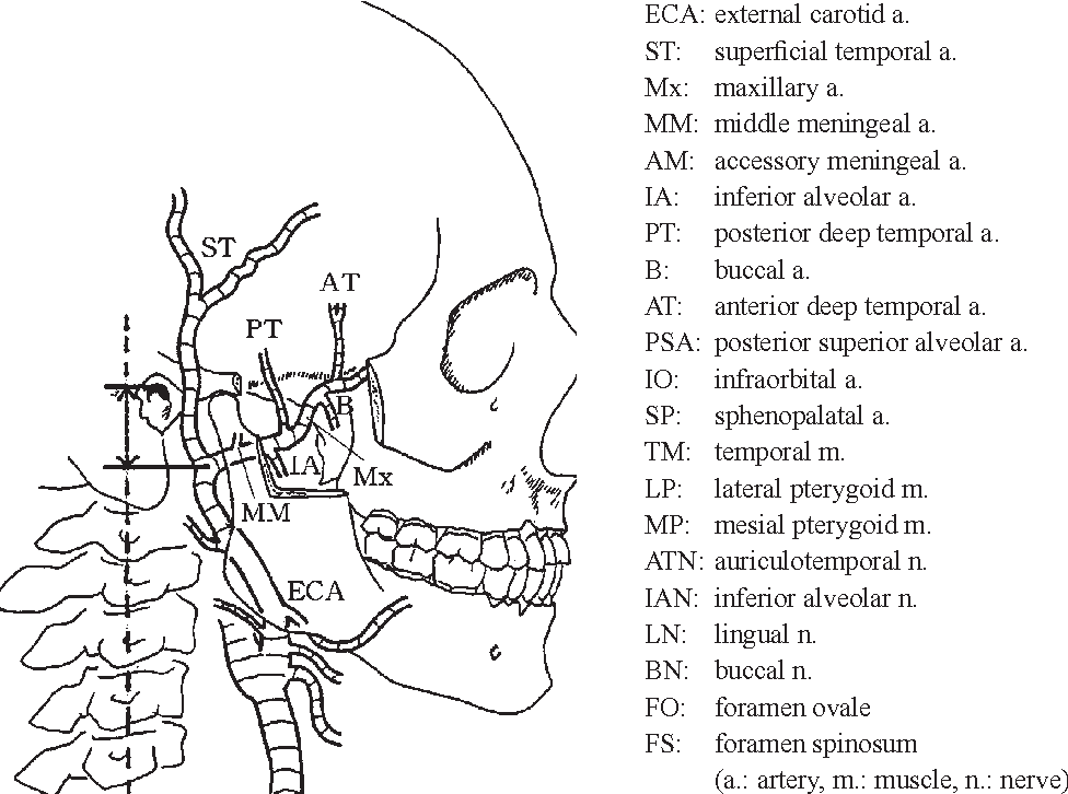 Figure 1 from Clinical anatomy of the maxillary artery. - Semantic ...