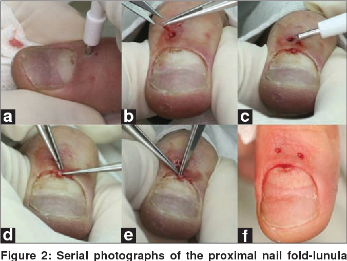 Proximal nail fold-lunula double punch technique: a less invasive ...