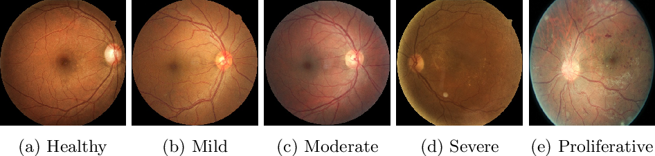 Figure 1 for Combining Fine- and Coarse-Grained Classifiers for Diabetic Retinopathy Detection