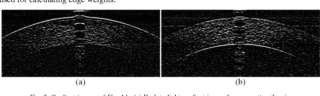 Fig. 3. Gradient images of Fig. 1.b. (a) Dark-to-light gradient image for segmenting the airepithelial layer boundary. (b) Light-to-dark gradient image for segmenting the endothelialaqueous layer boundary.