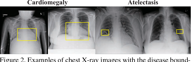 Figure 3 for Thoracic Disease Identification and Localization with Limited Supervision