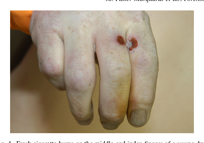 Figure 4 from Cigarette burns in forensic medicine  - Semantic Scholar