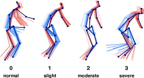Figure 1 for Vision-based Estimation of MDS-UPDRS Gait Scores for Assessing Parkinson's Disease Motor Severity