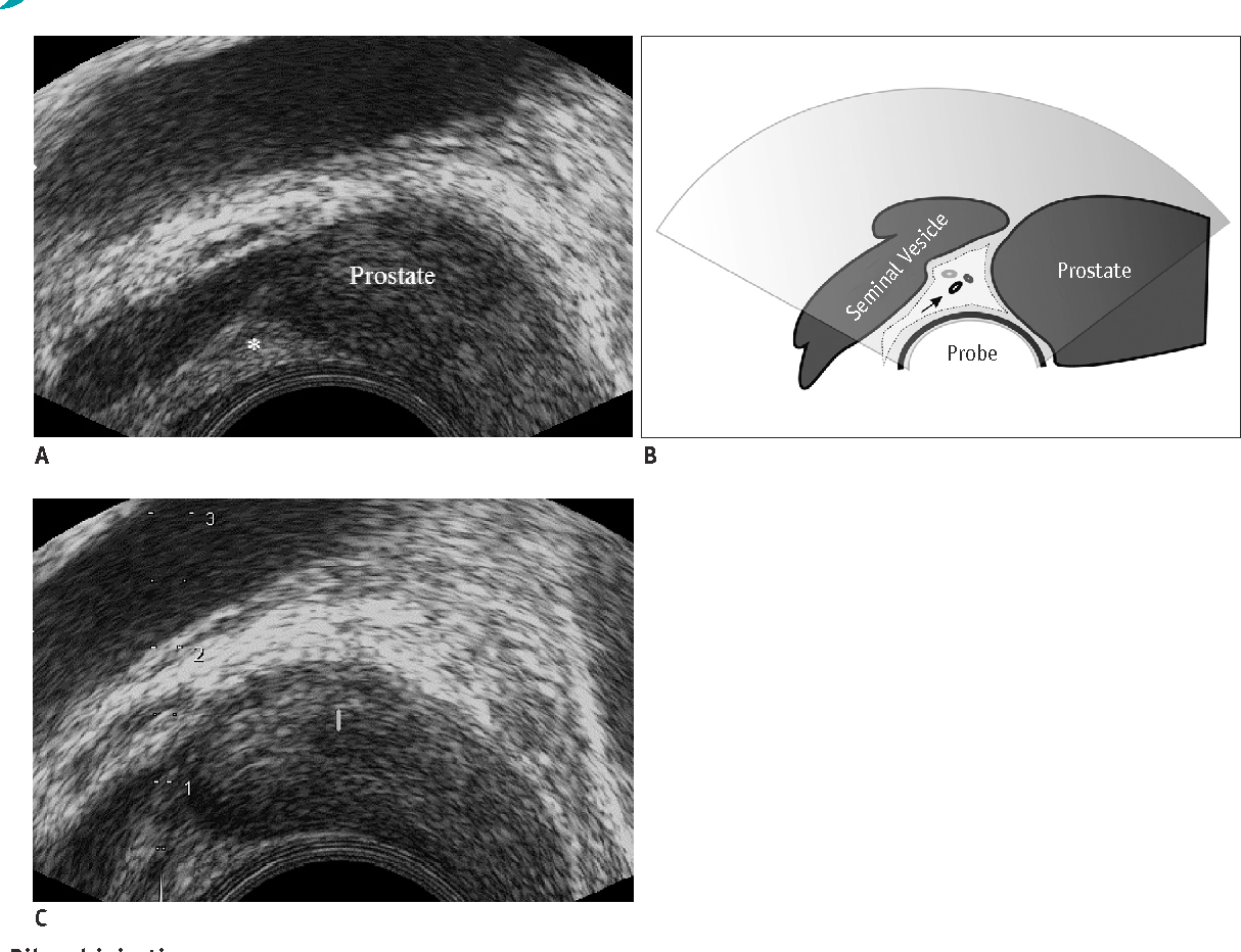 Figure 4 from Pain during Transrectal Ultrasound-Guided Prostate ...