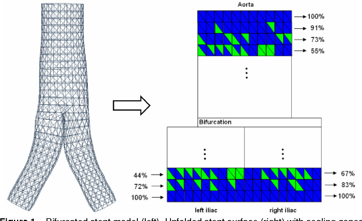 Figure 1 for Determination, Calculation and Representation of the Upper and Lower Sealing Zones During Virtual Stenting of Aneurysms