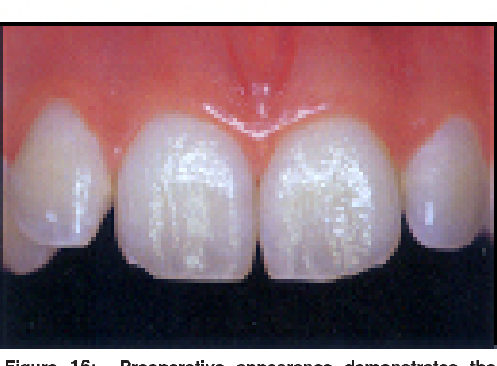 Figure 16 from Contemporary trends and techniques in tooth