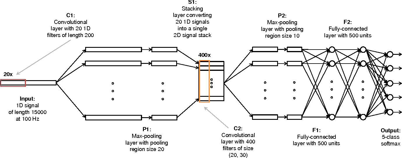 Figure 2 for Automatic Sleep Stage Scoring with Single-Channel EEG Using Convolutional Neural Networks