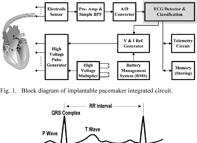 Figure 1 From Design Of Wavelet-based Ecg Detector For Implantable Cardiac Pacemakers