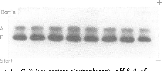 FIG I Cellulose acetate electrophoresis, pH 8 4, of newborn infants' Hb showing two subjects with intermediate levels (2--'0%) ofHb Bart's.