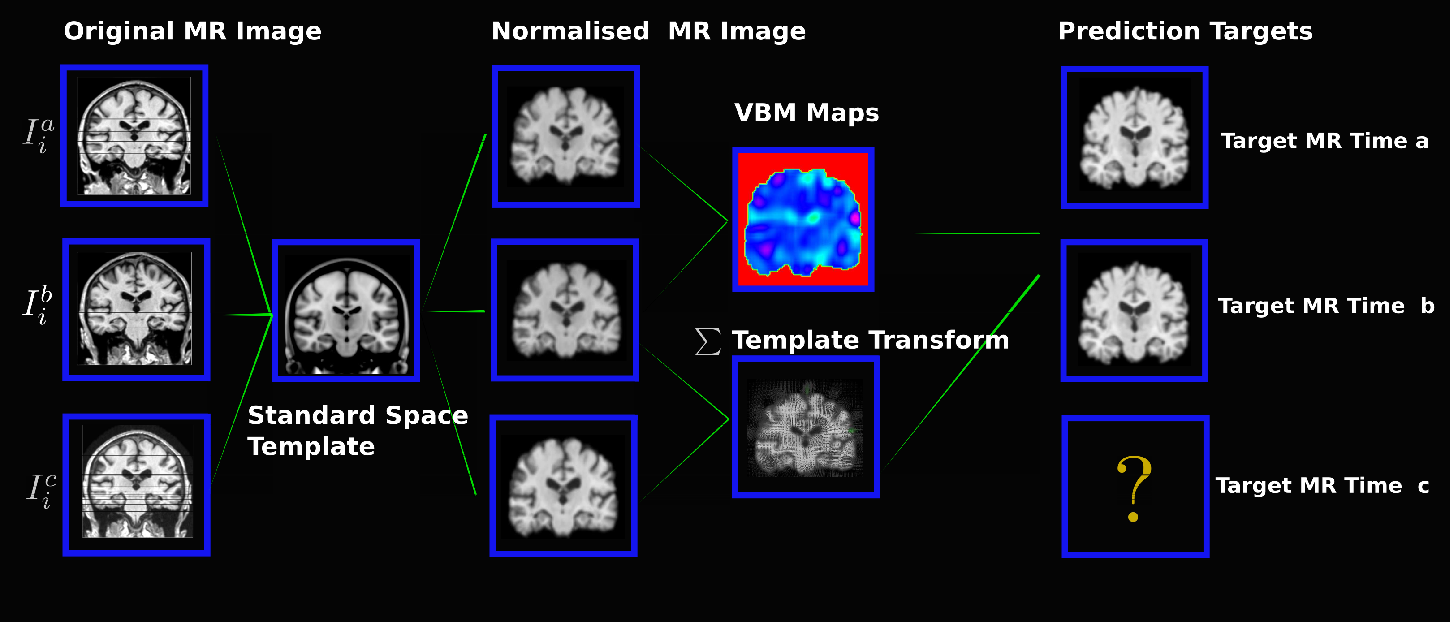 Figure 1 for Morphometry-Based Longitudinal Neurodegeneration Simulation with MR Imaging