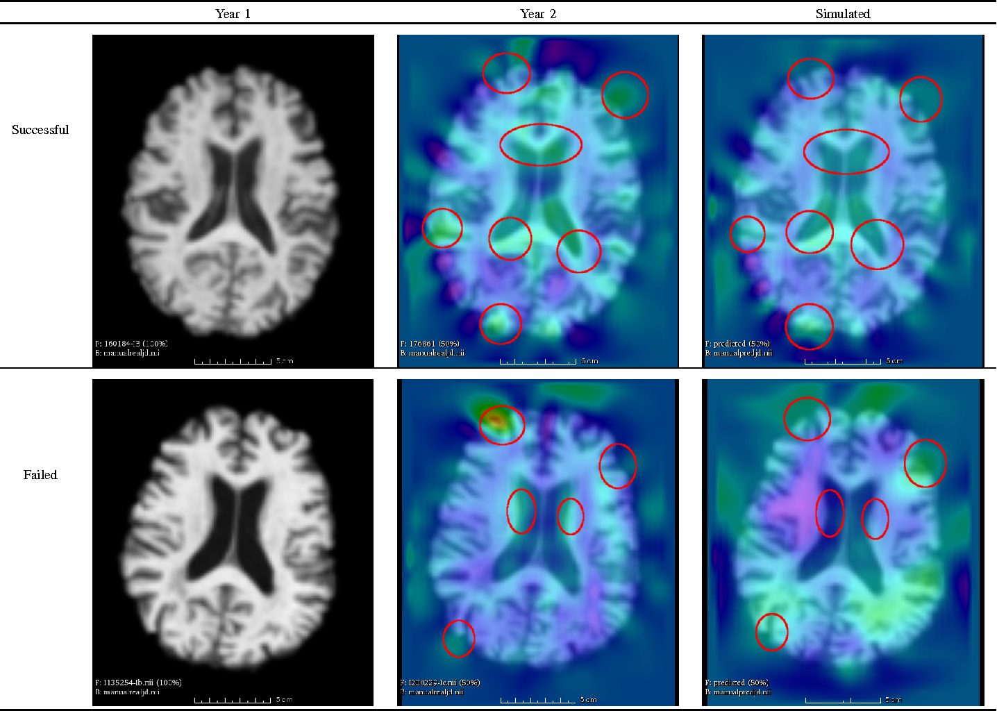 Figure 4 for Morphometry-Based Longitudinal Neurodegeneration Simulation with MR Imaging