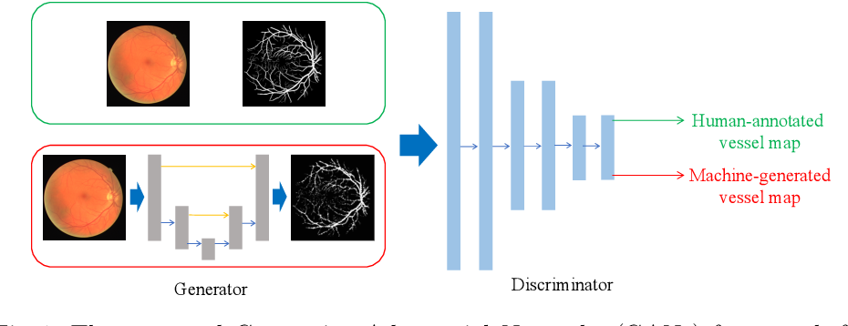 Figure 1 for Retinal Vessel Segmentation in Fundoscopic Images with Generative Adversarial Networks