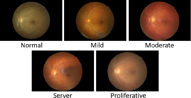 Figure 3 for Sea-Net: Squeeze-And-Excitation Attention Net For Diabetic Retinopathy Grading