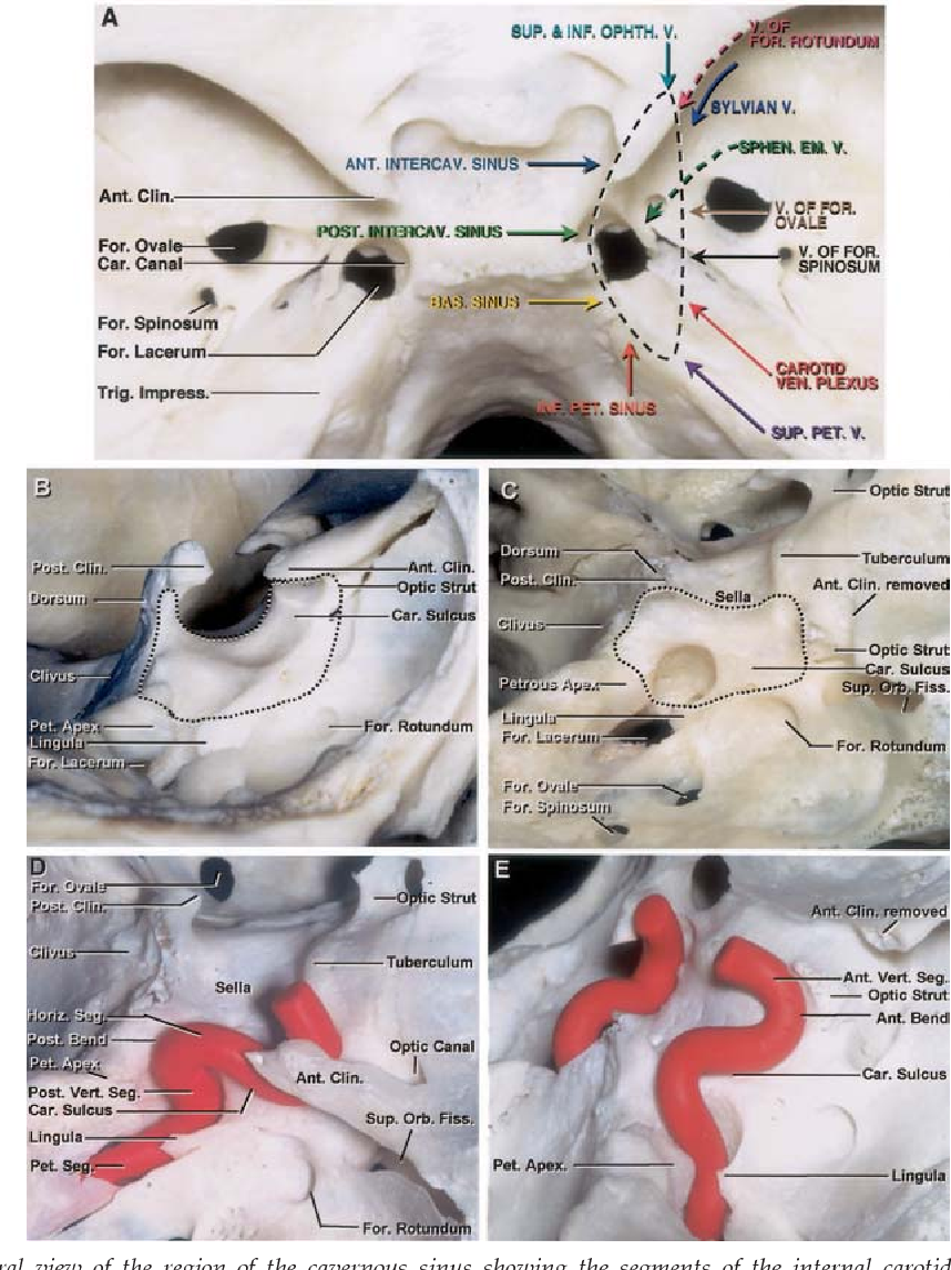 Microsurgical anatomy and approaches to the cavernous sinus ...