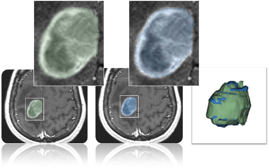 Figure 4 for GBM Volumetry using the 3D Slicer Medical Image Computing Platform