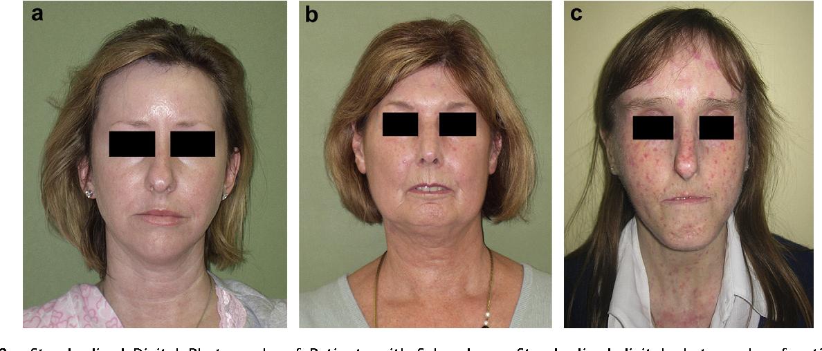 facial-tissue-transplantation-nude-young-flexible