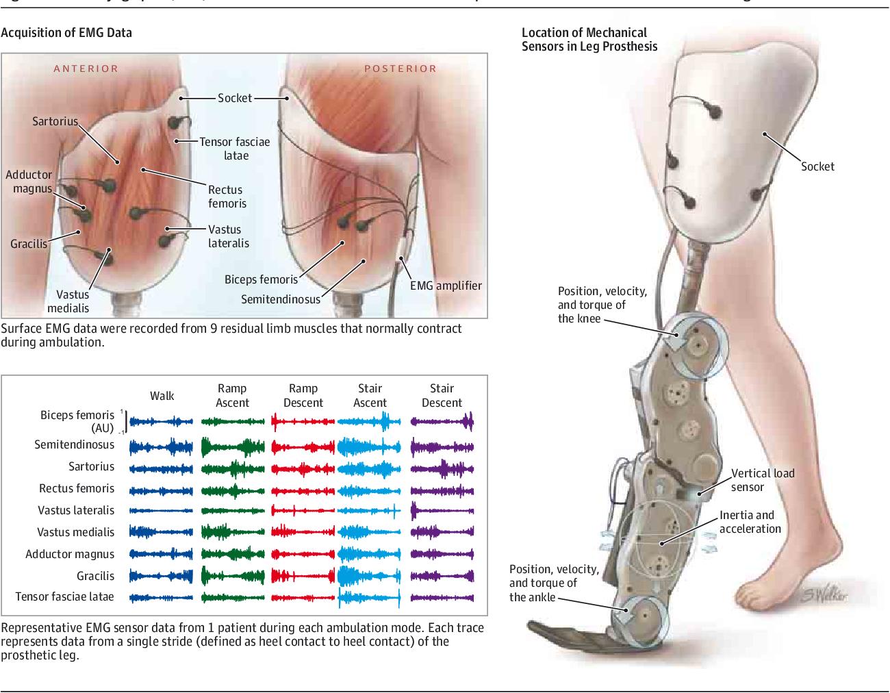 Hermosa Ankle Surface Anatomy Bosquejo - Anatomía de Las Imágenesdel ...