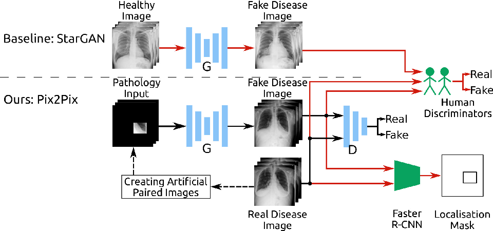 Figure 1 for Adversarial Pulmonary Pathology Translation for Pairwise Chest X-ray Data Augmentation