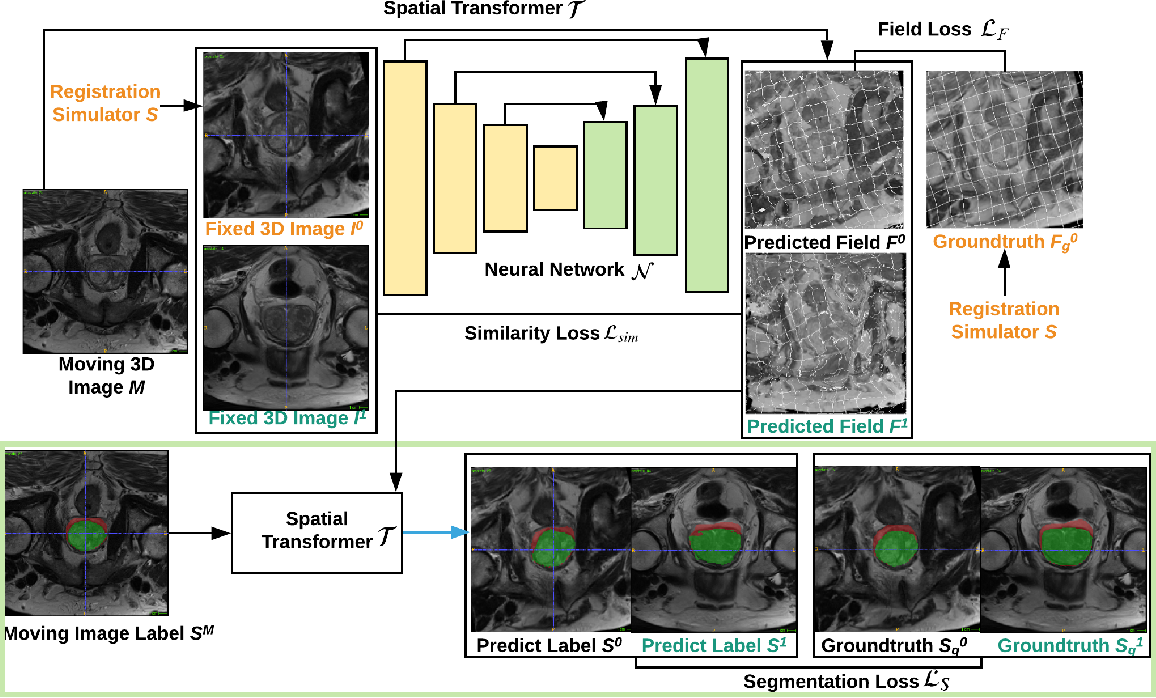 Figure 1 for NeurReg: Neural Registration and Its Application to Image Segmentation