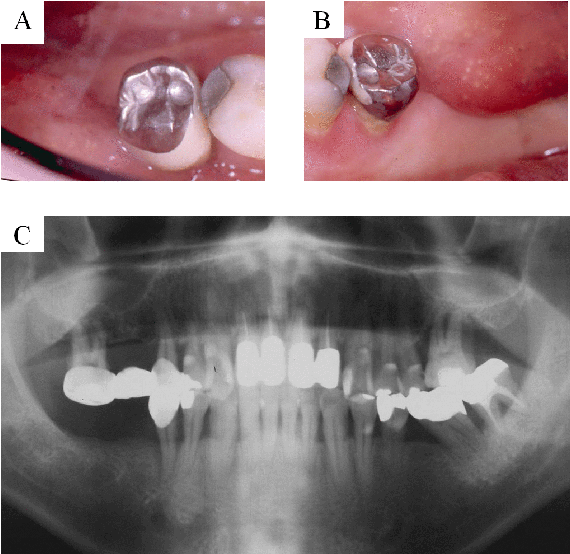 Figure 1. A: Initial clinical occlusal photograph. B: Initial lingual view. C: Preoperative radiograph showing apically involved lower right second premolar.