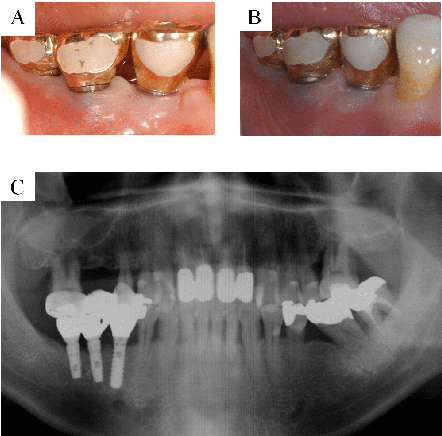 Figure 4. A: Clinical photograph taken after the prosthesis was delivered. B: The buccal view showing the prosthesis in function. C: No resorption around the implants was seen.