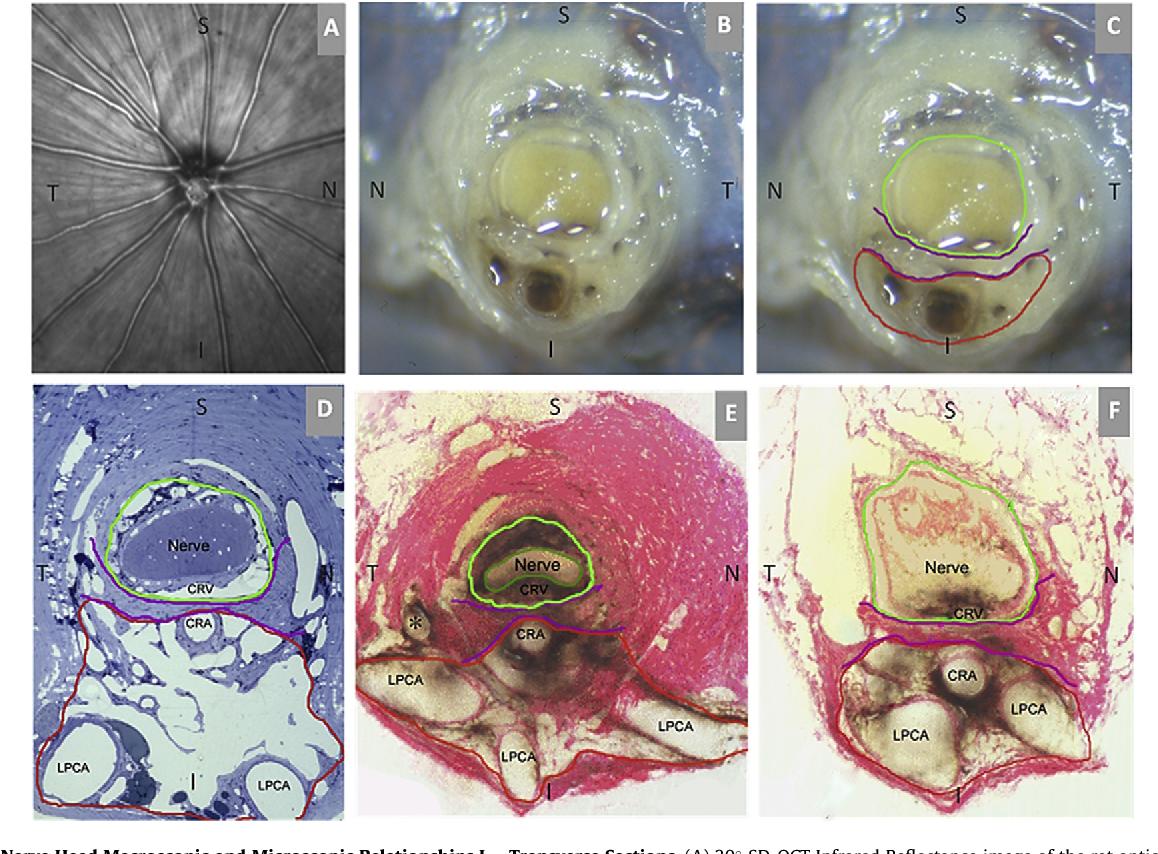 Rat optic nerve head anatomy within 3D histomorphometric ...