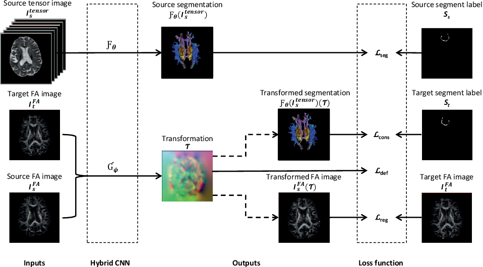 Figure 1 for A hybrid deep learning framework for integrated segmentation and registration: evaluation on longitudinal white matter tract changes
