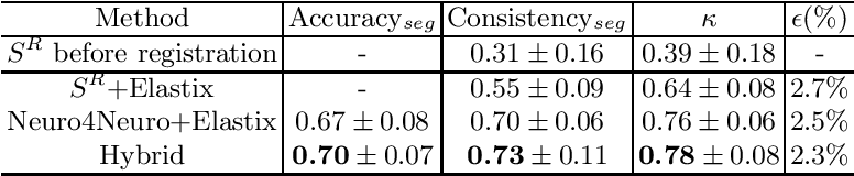 Figure 2 for A hybrid deep learning framework for integrated segmentation and registration: evaluation on longitudinal white matter tract changes