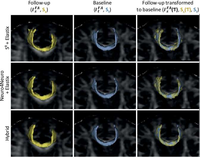 Figure 4 for A hybrid deep learning framework for integrated segmentation and registration: evaluation on longitudinal white matter tract changes
