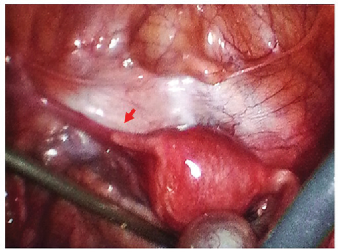 Unilateral ovarian and fallopian tube agenesis in an infertile ...